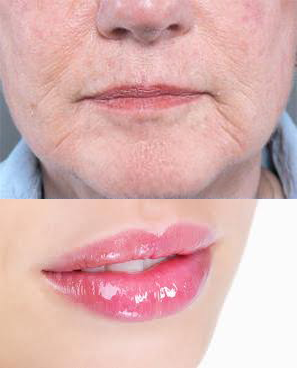 Volumising Filler For Lips giúp bạn có đôi môi căn mọng
