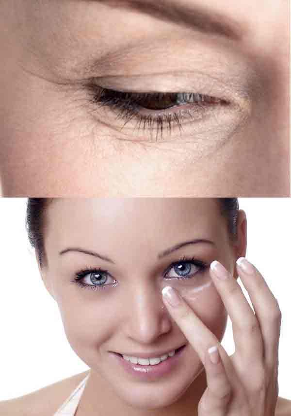 Xóa nết nhăn quanh mắt