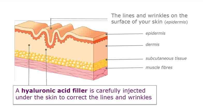 hyaluronic acid tác dụng với da
