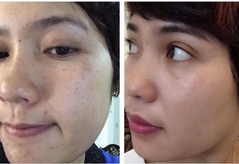 Tự tin hơn khi dùng bộ tái tạo MD Dermatics