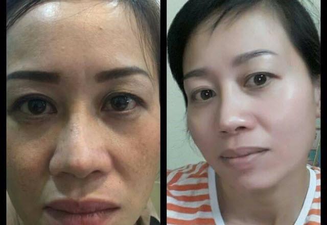 Kết quả dùng MD Dermatics của chị Hạnh Nguyên Quận 2