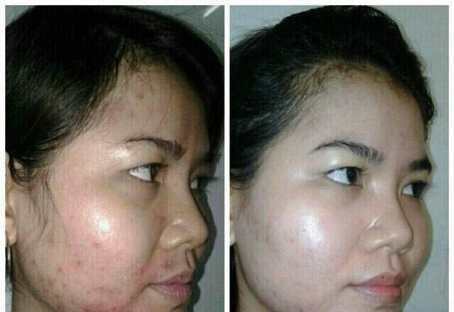 Kết quả sử dụng MD Dermatics của chị Mộng Điệp Hà Nội