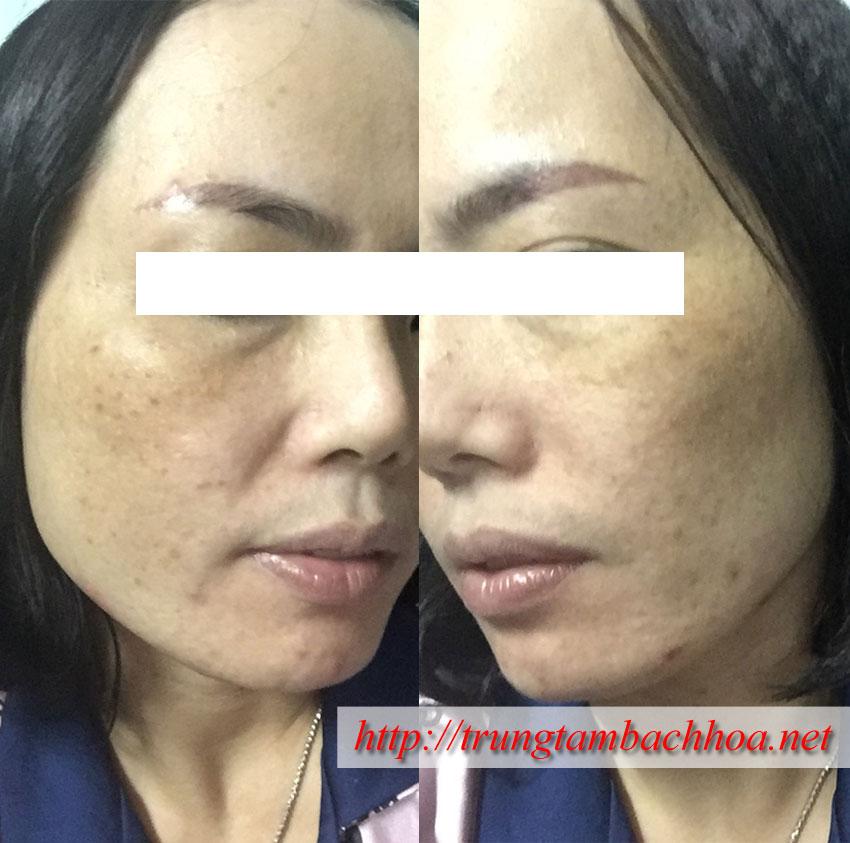 Da khách hàng trước khi sử dụng MD Dermatics và The AGE Pill