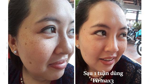 Da đẹp sau khi dùng firmax3